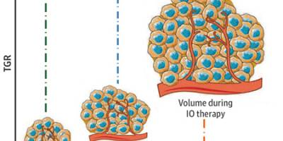 Enfermedad hiperprogresiva en pacientes con CPNM avanzado tratados con inhibidores PD-1 / PD-L1