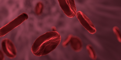 PRESENTACIÓN: DIAGNOSIS MOLECULAR – BIOPSIA LÍQUIDA