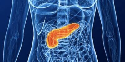 K17, proteína que promueve el cáncer, una posible diana clave en la batalla contra el cáncer de páncreas