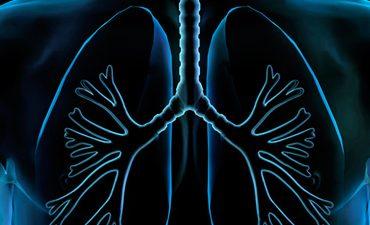El cáncer de pulmón en los hombres: síntomas y diagnóstico