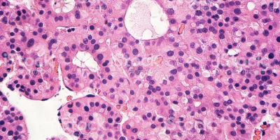 Investigadores de IDIBELL presentan un nuevo tratamiento prometedor para el carcinoma hepatocelular