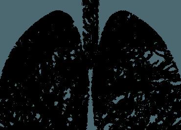 La inmunoterapia podría acelerar algunos tipos de cáncer de pulmón