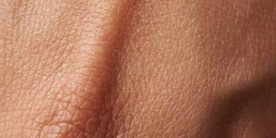 La FDA aprueba Poteligeo para tipos de linfoma no Hodgkin poco frecuentes y difíciles de tratar